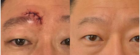 before_and_after_eyebrow