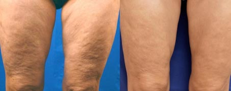 before_and_after_legs