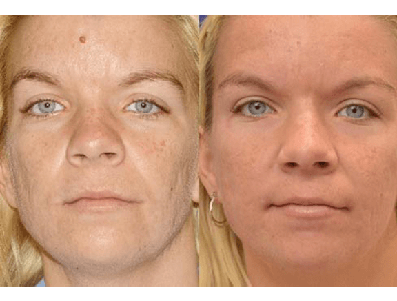 before_and_after_woman